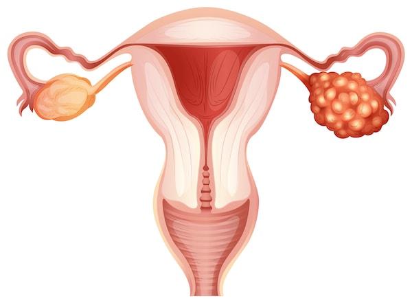 陳亮祖醫生-臨床腫瘤科專科醫生-首款獲批毋須接受生物標記測試-復發性卵巢癌維持治療新突破-PARP抑制劑-卵巢癌-Cancer-Informer-腫瘤學新知